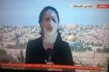بالفيديو ..بعد إصابتها بقنبلة.. مراسلة قناة الميادين تظهر بنصف وجهها